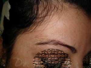 Lazerle Kalıcı Makyaj Silme