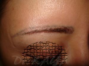 Kalıcı makyajla kalınlaştırılan kısım silinmiş