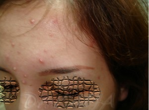 Uygulandığı alandaki kaşları dökmüş kalıcı makyaj
